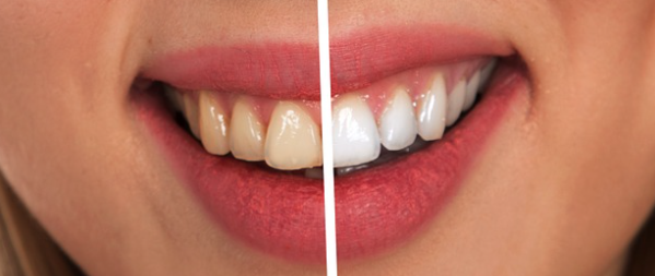 Ways To Whiten Teeth At Home The Brunette Babe